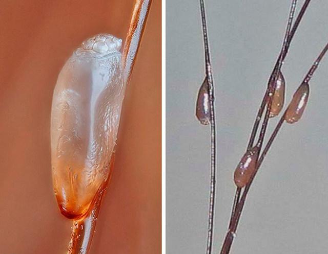 Перекись водорода от вшей и гнид: отзывы, как убить паразитов, можно ли вывести их совсем, инструкция по применению