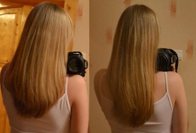 Никотиновая кислота (витамин рр) в ампулах для роста волос: способы применения, рецепты масок, цена, отзывы
