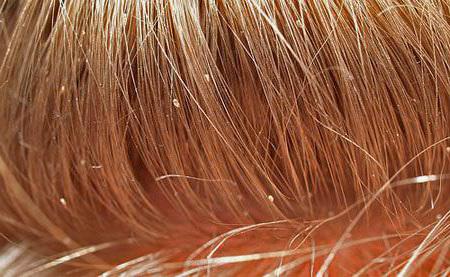 Гниды на волосах: что это такое, как выглядят яйца вшей у человека на голове, фото, какого бывают цвета, виды (пустые, сухие, черные, белые) под микроскопом