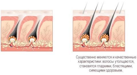 Бальзам-маска Русское поле для роста волос с красным перцем: состав, инструкция по применению и эффект от использования, отзывы