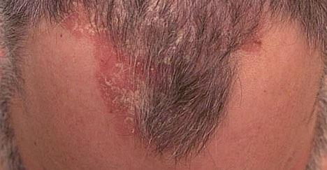 Красные пятна на голове под волосами: фото, покраснение кожи и высыпания у мужчин и женщин, у взрослых и ребенка, причины розовых точек на затылке, которые чешутся