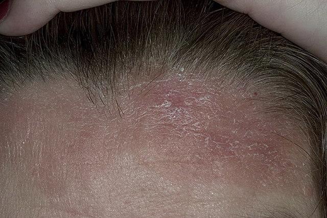 Дерматоз: симптомы и лечение, фото атопического дерматита волосистой части головы, течение болезни у взрослого и ребенка