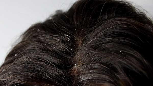 Аспирин для волос от перхоти: как правильно добавить в шампунь, отзывы, рецепты ополаскиваний и масок в домашних условиях