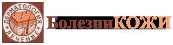 Аутоиммунная алопеция: лечение, в чем причины заболевания, как не пропустить симптомы