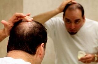 Мазь для роста волос на голове: обзор самых популярных (мивал, сульсена, серная мазь, целестодерм) и эффект от использования, отзывы