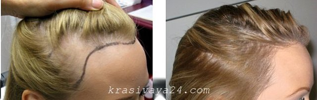 Пересадка волос на голове: цена, отзывы пациентов, операция и безоперационная методика, фото до и после у женщин и мужчин, какие могут быть результаты, реабилитация