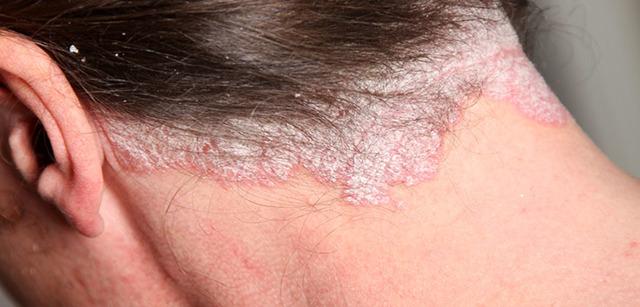 Мазь от псориаза на голове: кандид, негормональные и другие эффективные кремы при псориазе волосистой части головы, состав, цена, инструкция по применению