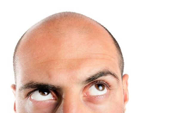 Выпадение волос: причины и лечение у женщин, что делать в домашних условиях, почему происходит алопеция, облысение на голове у девушек, лекарство от залысин, отзывы