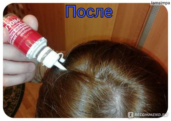 Активатор роста волос Фолликапил: состав препарата, в каких случаях помогает, цена, отзывы