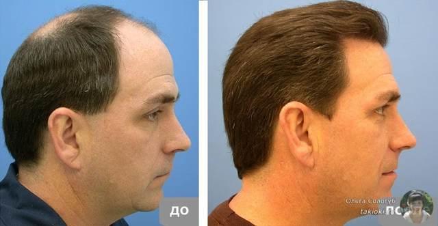 Ампулы Виши (vichy) для роста волос: как применять, фото до и после, отзывы о использовании