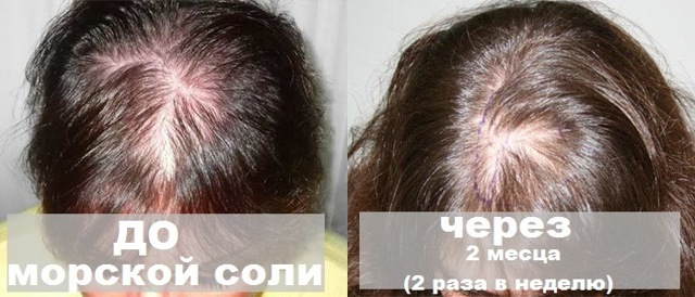 Соль для волос от выпадения и роста: солевая маска, лечение, как втирать в кожу головы, как мыть, какая лучше поваренная или морская, помогает ли укрепить, как влияет