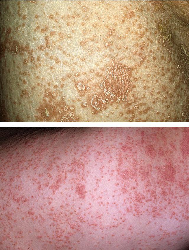Болезнь Девержи (волосянка, красный волосяной лишай): фото, лечение, симптомы, причины