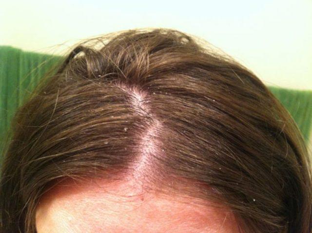 Шампунь от зуда кожи головы: отзывы, список лучших лечебных средств от проблемы, состав, инструкция по применению, цена