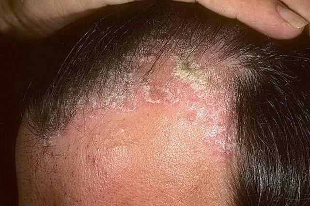 Болячки на голове: коросты в волосах, причины, почему чешется голова и появляются мокнущие болячки и перхоть, лечение у взрослых и детей, фото