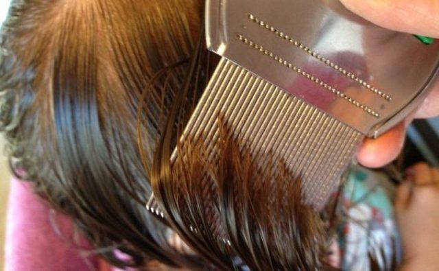 Как вычесать гнид с длинных волос: как правильно, быстро и чем это сделать, техника вычесывания вшей, видео, зачем нужно это сделать после обработки у человека