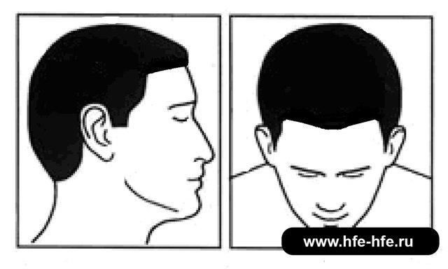 Стадии облысения: степени алопеции у мужчин и женщин по Норвуду, фото, описание