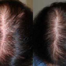 Криомассаж головы жидким азотом: отзывы о лечении, фото до и после, плюсы и минусы, противопоказания, эффективность в борьбе с облысением, себореей и другими проблемами