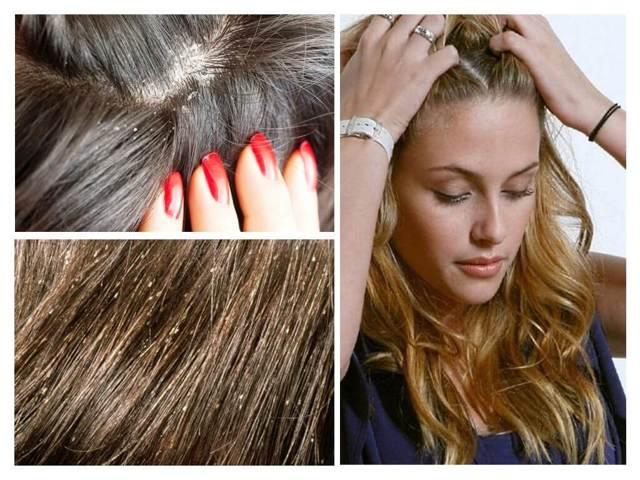 Как отличить перхоть от гнид на волосах, фото чем они отличаются