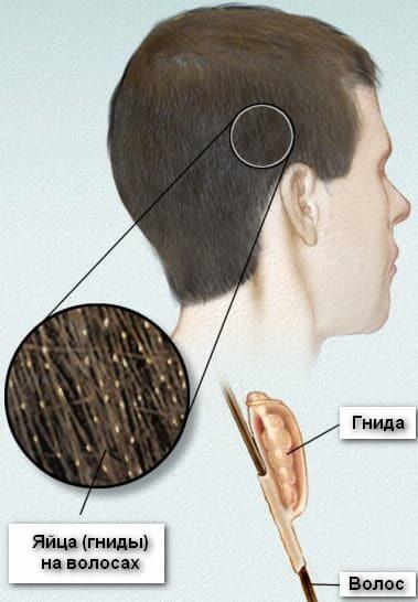 Как понять что у тебя вши: симптомы появления на голове у человека, признаки педикулеза у взрослых, как обнаружить, распознать, определить паразитов самостоятельно
