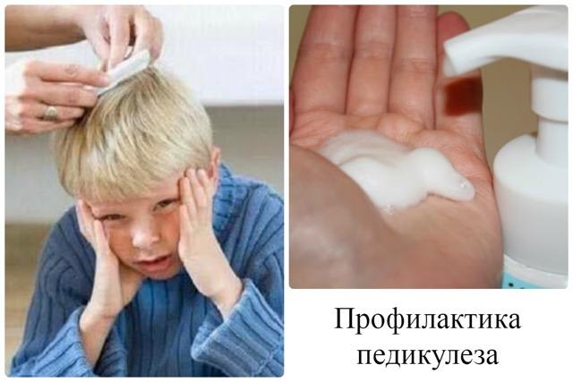 Профилактика педикулеза: причины появления вшей и гнид, меры борьбы в домашних условиях, в школе, памятка для родителей, средства профилактики, лечение, как уберечься