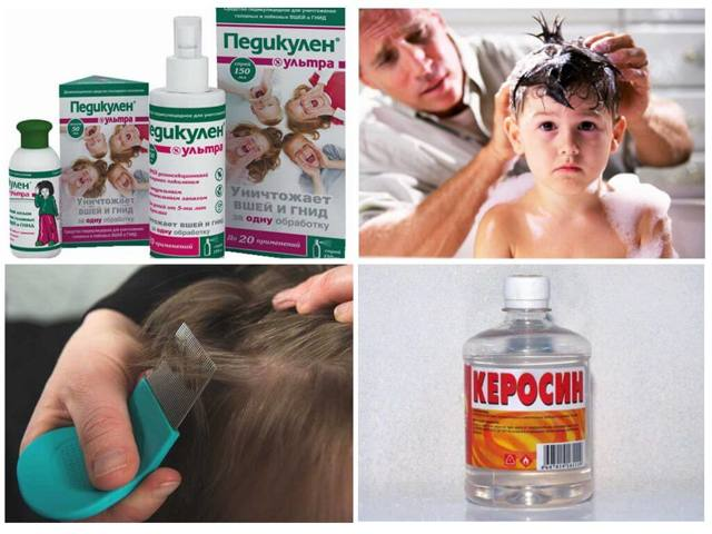 nit free (Нит фри) от вшей: отзывы и инструкция по применению мусс, шампунь, спрей, масло, гель, какое средство выбрать, цена в аптеке