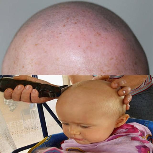 Как избавиться от гнид: как вывести на длинных волосах, как убрать сухие и мертвые гниды, удалить и убить быстро, как бороться с паразитами на голове, как лечить