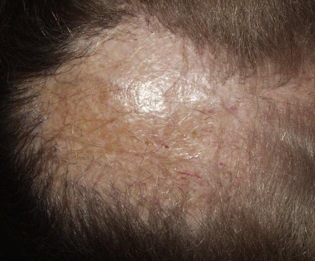 Рубцовая алопеция: лечение фронтальной локализации и не только, фото, симптомы, причины, профилактика