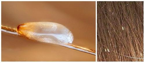 Вши и гниды: инкубационный период педикулеза у человека, через сколько дней вылупляются, лечение