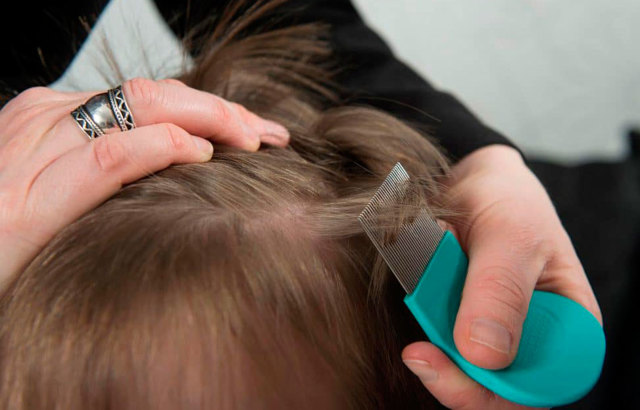 Профилактика вшей у детей: как появляются, откуда берутся, чем лечить в домашних условиях, причины педикулеза на голове у ребенка, средство от вшей и гнид