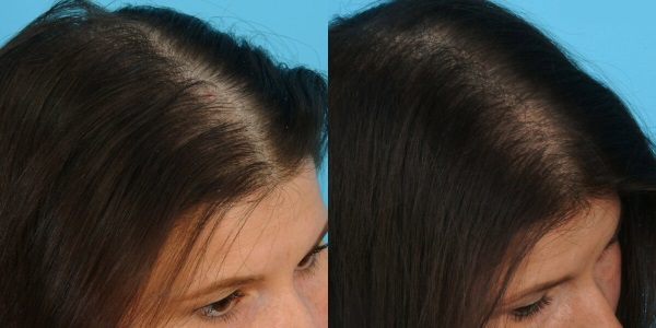 Плазмолифтинг для волос: отзывы, цена, фото до и после, что лучше мезотерапия или эта процедура для головы от выпадения, результаты, как часто делать, противопоказания
