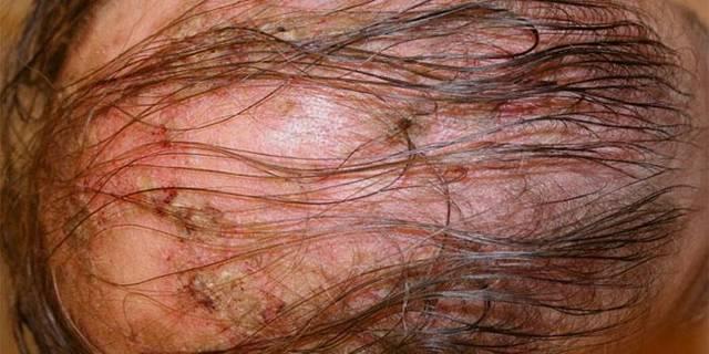 Корка на голове у взрослого: причины появления сухих корочек или белой корки на коже под волосами, перхоти и себореи, что с этим делать