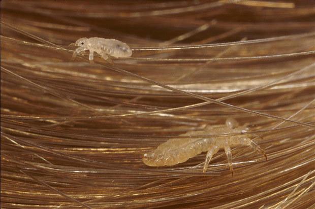 Вши: фото в волосах на голове, как выглядят под микроскопом, какие бывают вши и гниды, какого они цвета, размера, черные и белые виды, видео, есть ли у них крылья