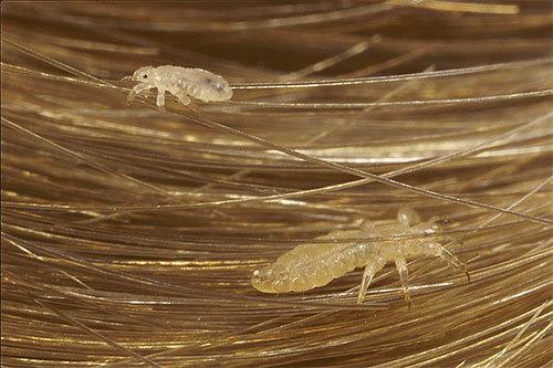 Могут ли появиться вши на нервной почве: бывают ли паразиты от нервов и стресса у человека, это миф или реальность, психосоматика педикулеза