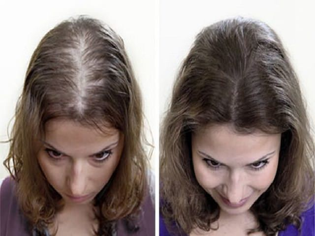 Чеснок от выпадения волос: рецепты масок против облысения, отзывы об эффективности, плюсы и минусы, побочные эффекты и противопоказания