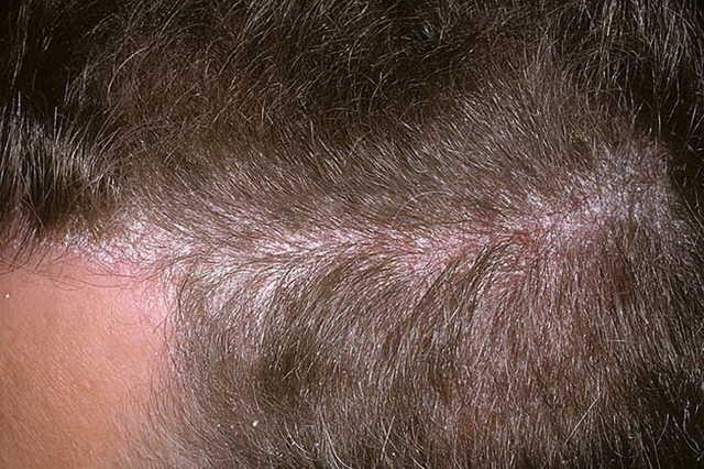 Шелушится кожа на голове: почему чешется и появились болячки, хлопья, красные, белые пятна под волосами у взрослых женщин и мужчин, что делать, какое лечение