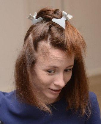 Залысины на лбу у женщин: как убрать их на висках, на макушке и других участках на голове, что делать, чтобы быстро избавиться от проблемы, причины и лечение, какое средство выбрать, отзывы