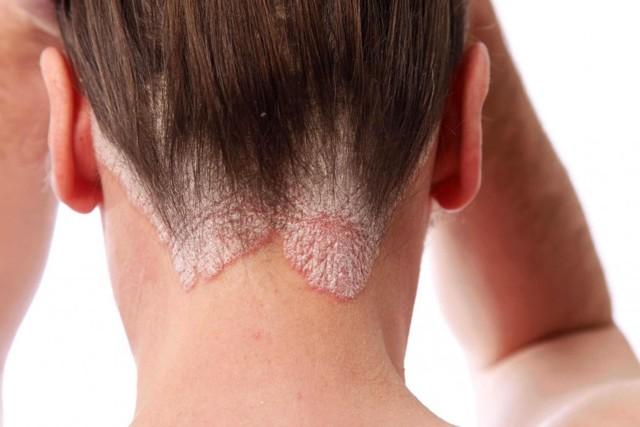 Псориаз у детей: фото на голове, как вылечить болезнь у ребенка, подростка, как выглядит начальная стадия на волосистой части головы, лучшие мази для лечения