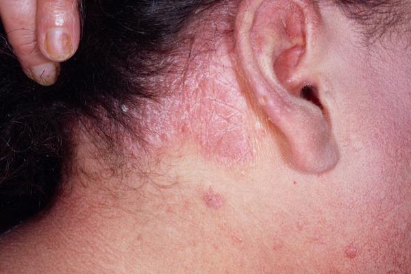 Демодекоз волосистой части головы: лечение волосяного подкожного клеща на голове у людей, симптомы, фото