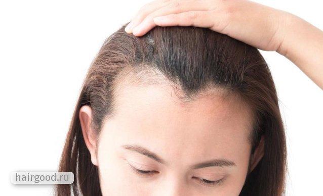 Линия роста волос на лбу: что это такое, как производится коррекция неровной линии роста волос
