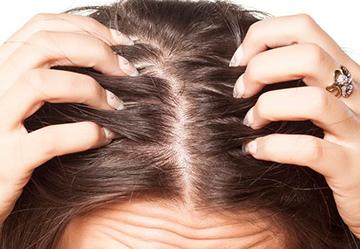 Лосьон и спрей от псориаза на голове: лучшие средства от проблемы волосистой части головы, инструкция по применению, состав, цена