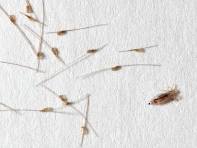 Как размножаются вши: как быстро и сколько гнид откладывает вша за сутки на голове у человека, как распространяются, скорость развития
