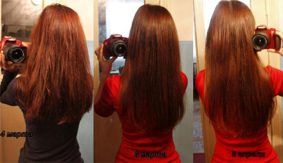 Никотиновая кислота (витамин рр) в таблетках для роста волос: как пить, инструкция по применению, противопоказания, эффект от применения, отзывы
