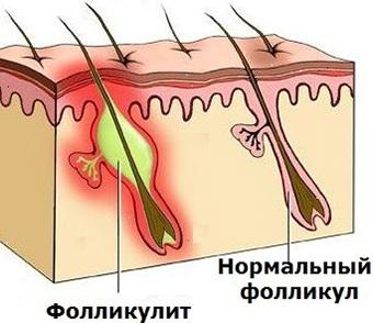 Воспаление волосяного фолликула: фото, лечение, причины заболевания, профилактика