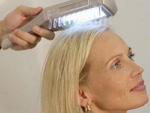 Виды и лечение алопеции у женщин: очаговая, гнездная, локальная и другие виды облысения и выпадения волос, причины, фото, рекомендации что делать, отзывы