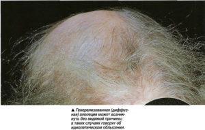 Сильное выпадение волос: при каких заболеваниях это происходит (вич, гипотериоз, сахарный диабет 2 типа, рак, анемия и другие), от каких лекарств, лечение