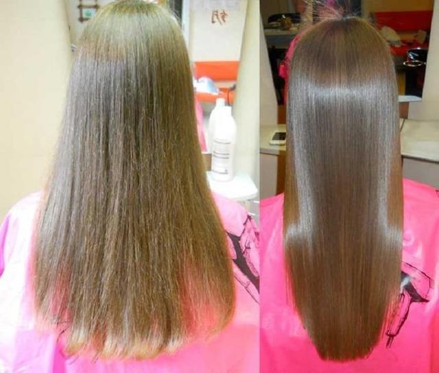 Мезотерапия (уколы) для роста волос: противопоказания и какой эффект от процедуры, цена, фото до и после