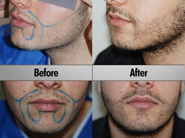Пересадка бороды: трансплантация волос на бороду, фото до и после, цена, отзывы