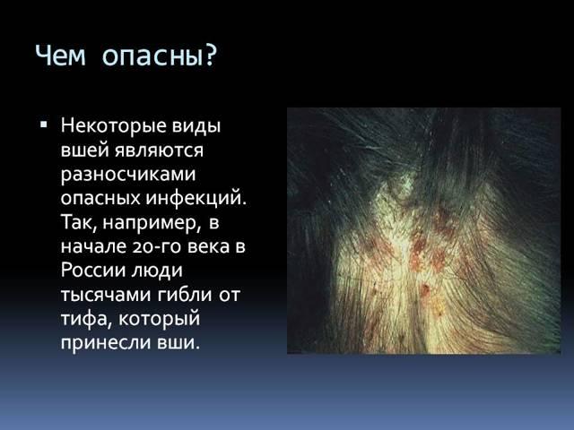 Чем опасны вши: какие заболевания передают человеку, что переносят сухие гниды и какие последствия могут быть от педикулеза на голове