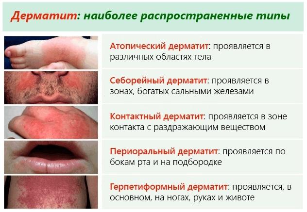 Скин кап шампунь от перхоти: инструкция по применению при себорейном дерматите, какие бывают аналоги дешевле, состав средства, отзывы об использовании