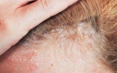 Диета при себорейном дерматите волосистой части кожи головы: подбираем питание при перхоти, отзывы об эффективности диеты при себорее